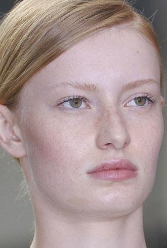file_176749_0_freckles