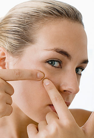 According to new research, people who suffer from acne tend to have longer telomeres and are therefore genetically #blessed with more age-resistant skin.