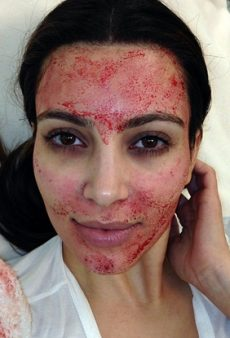 PRP (aka the Vampire Facial) Is the Next Big Thing in Noninvasive Anti-Aging