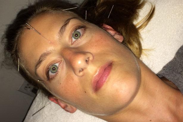 julie-acupuncture-c