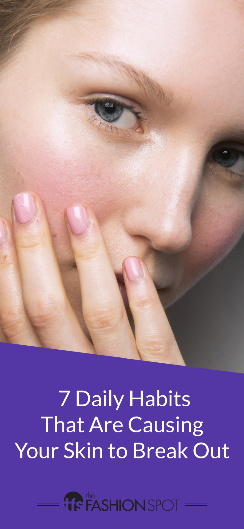 Adult Acne Causes: 7 Daily Habits Causing Your Breakouts