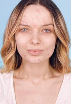 Pimples Are Officially Cool, and These Celebs and Influencers Prove It
